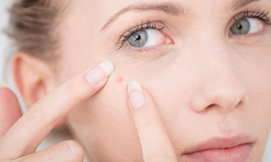 Effectively Manage Acne Difficulties With These Guidelines